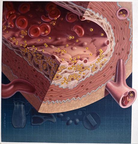 koleszterin, metabolikus szindróma