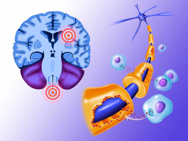 szklerózis multiplex, sm