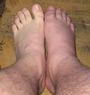 gout_feet2.jpg